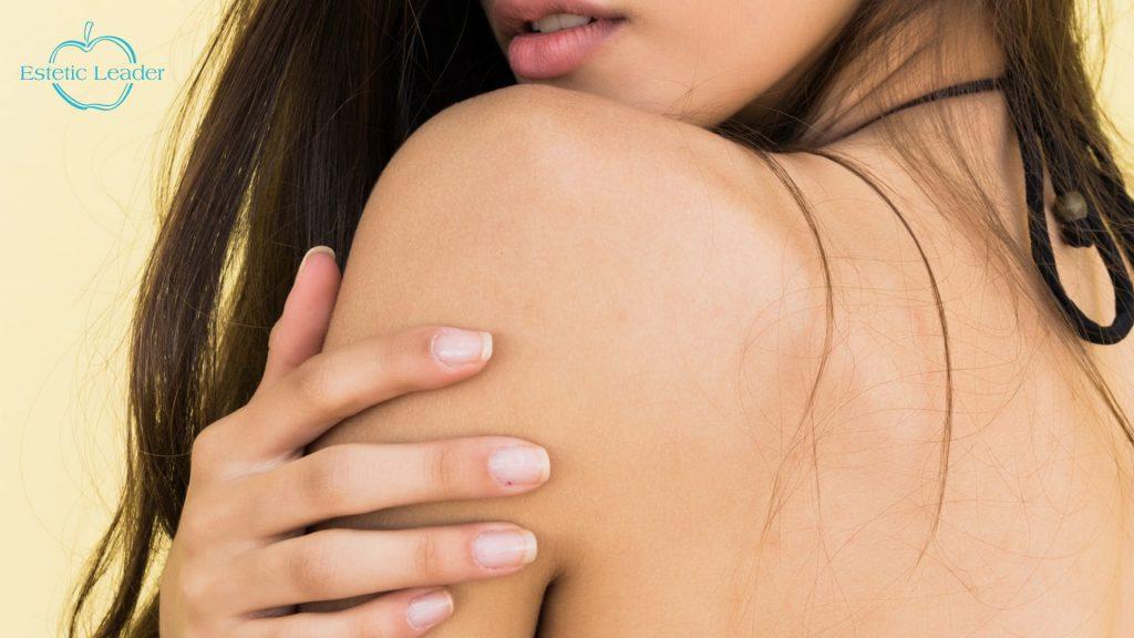02-Los beneficios de la depilación láser